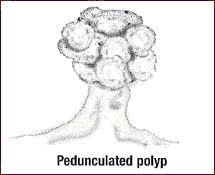 pedunculated_polyp
